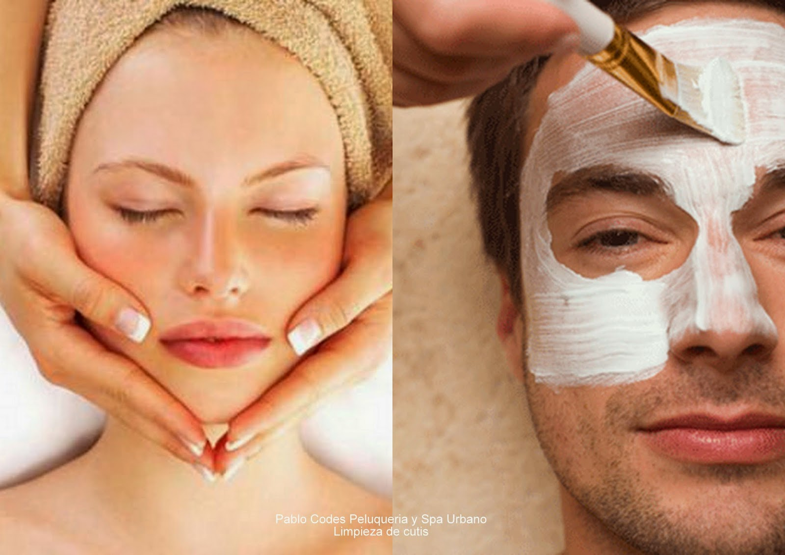 Narine y el acné