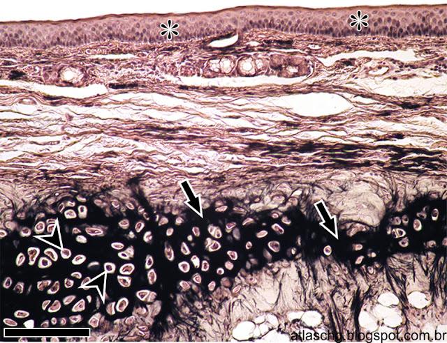 Corte de epiglote (cartilagem elástica)