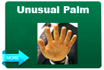 Unusual Palm Images