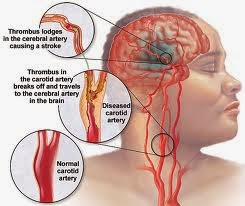 Obat stroke dan pantangannya