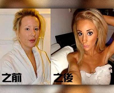 瑞典整型女 Kissie:20歲瑞典女整型12次·胸部比頭大!