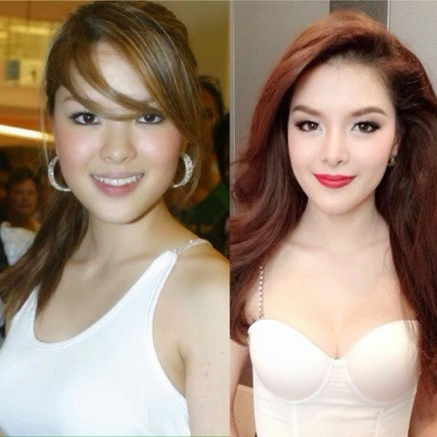 Plastic surgery before and after korean actress