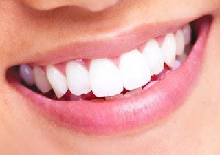 دراسة طب الأسنان في رومانيا