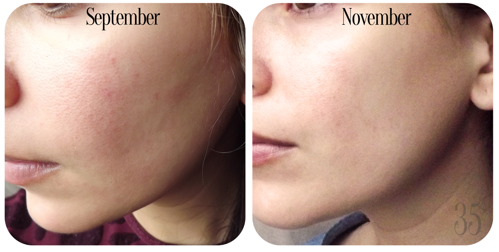 OST Original Pure Vitamin C20 Serum before and after