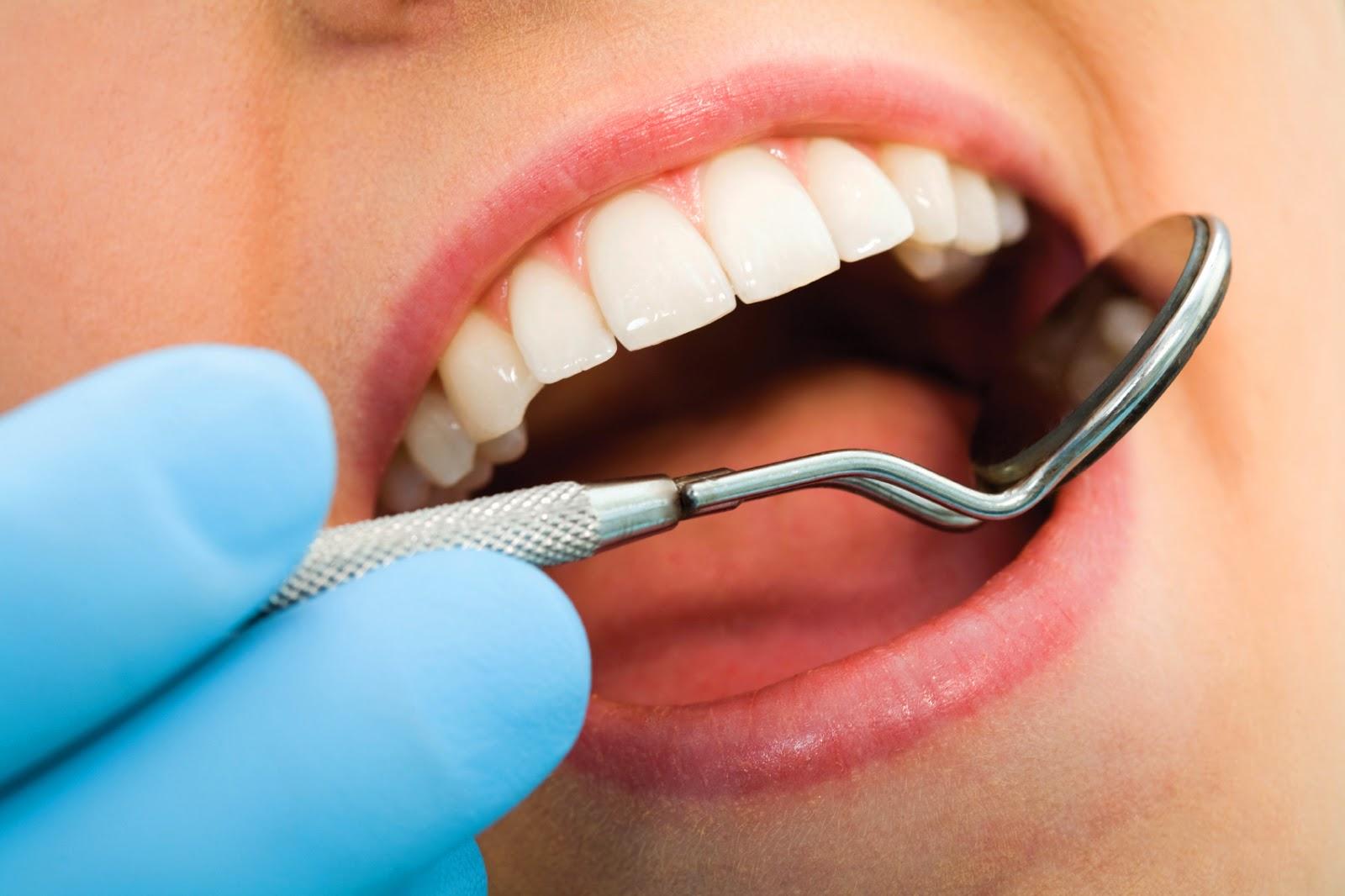 Les dents de mon conjoint, de bébé et les miennes - Concours (fermé) - #MamanPG