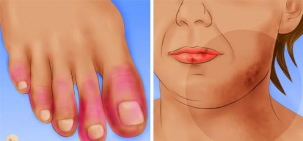 Le psoriasis sous-cutané sur la personne