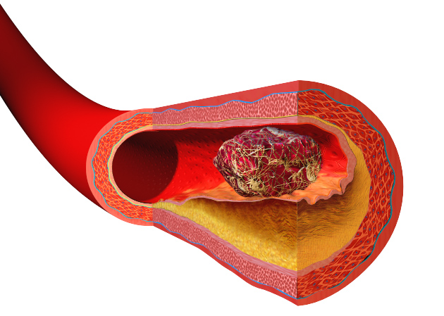 how to clear blood vessels of cholesterol