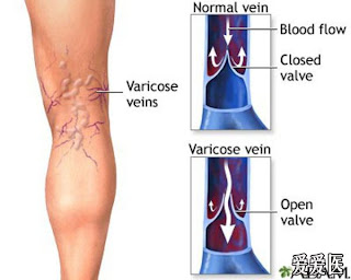 varices
