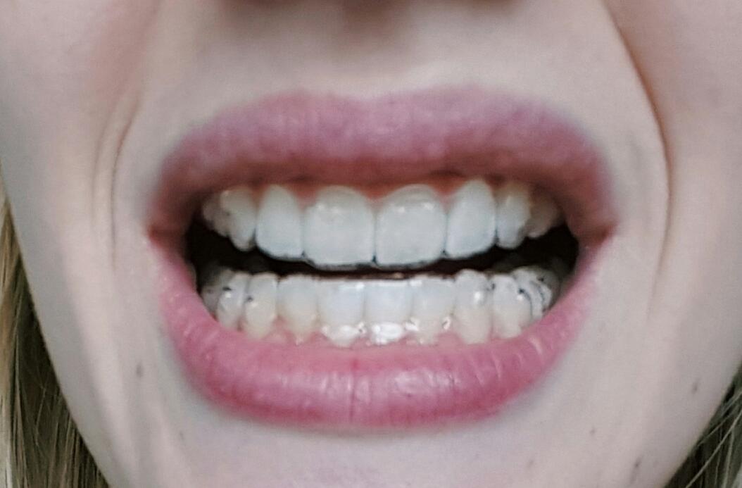 appareil dentaire invisalign avis