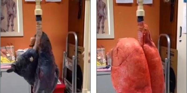 Ini Gambar Paru-paru Saat Merokok 60 Batang! | Disambung.com