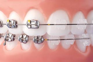Benefícios da Ortodontia