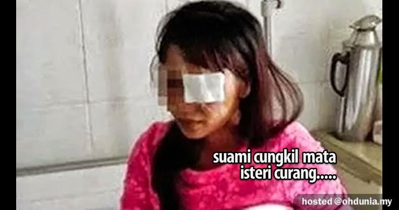 Padah Curang!.. Suami Cungkil Mata Isteri Dengan Tangan (Video)