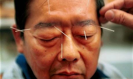 Akupunktura može pomoći u liječenju migrene