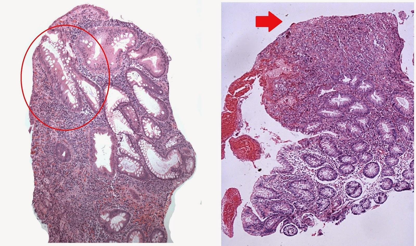 Inflammatory Granulation Tissue Polyp Stomach