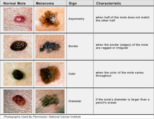 Description, Definition and Diagnosis of Common Skin Rashes