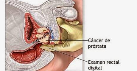 ¿Qué es el cáncer de próstata y cuales son sus síntomas?