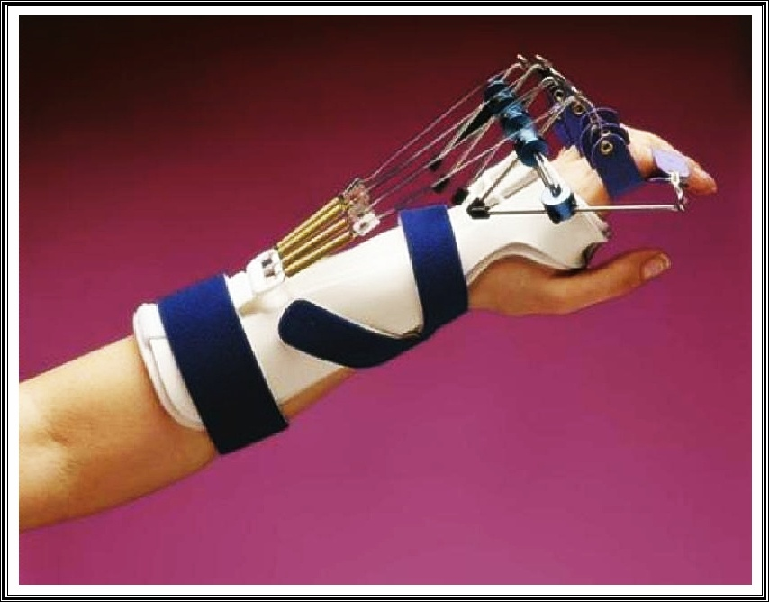 Occupational Therapy Splinting How To Make A Splint