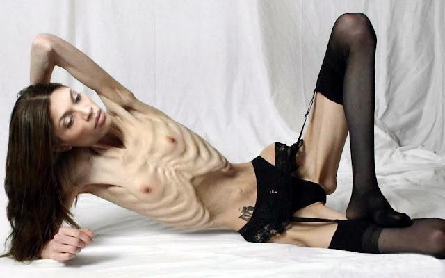 Model med ekstrem anoreksi