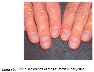 Nail Diseases Blue Nails