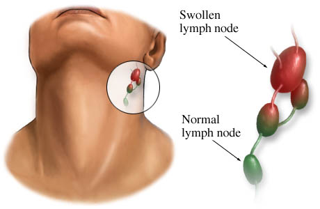 Theme of the day:lymph node pain under jaw