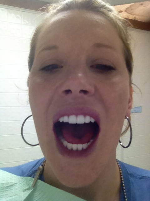 Pictures of dentures that look real