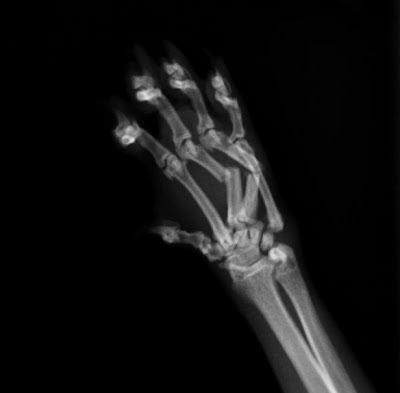 fractura de metacarpianos en gato, vista anteroposterior