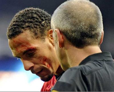 Rio Ferdinand é atingido por uma moeda no olho
