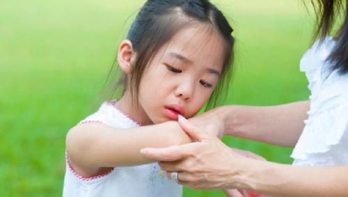 Nguyên nhân gây bệnh viêm xương ở trẻ em các bậc phụ huynh cần chú ý