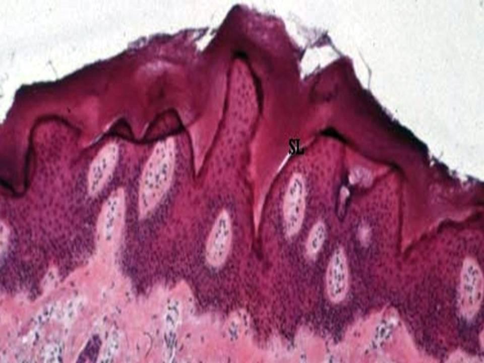 Di eropa diagnosis parapsoriasis banyak di temukan dari pada di amerika serikat 2