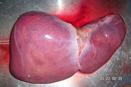 Gejala/ Tanda Awal Penyakit Liver/ Hati