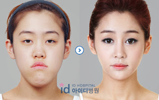 ... surgery, v-line surgery and rhinoplasty before and after at ID