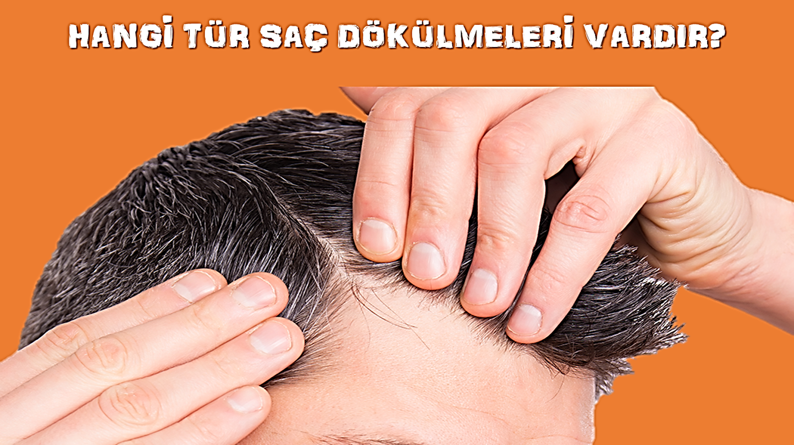 Etiket: Dökülen saçlar