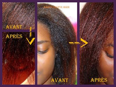 Après laccueil des antibiotiques tombe fortement le cheveu