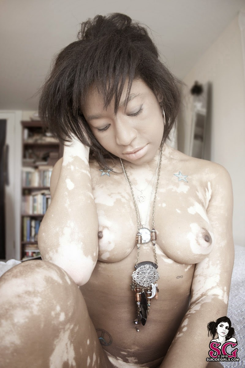 photo d'une suiccide girl atteinte de vitiligo