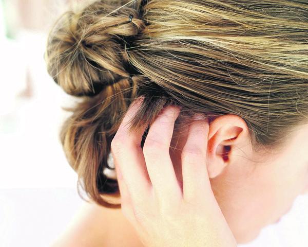 Penyebab Kulit Kepala Kering, Gatal Dan Mengelupas