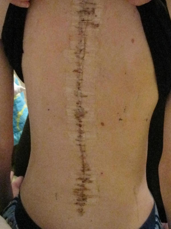 how to break up scar tissue in lower back