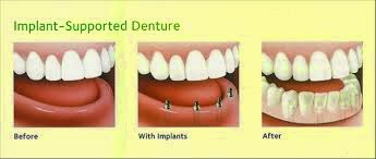dental implants on dentures at dental care Bellevue