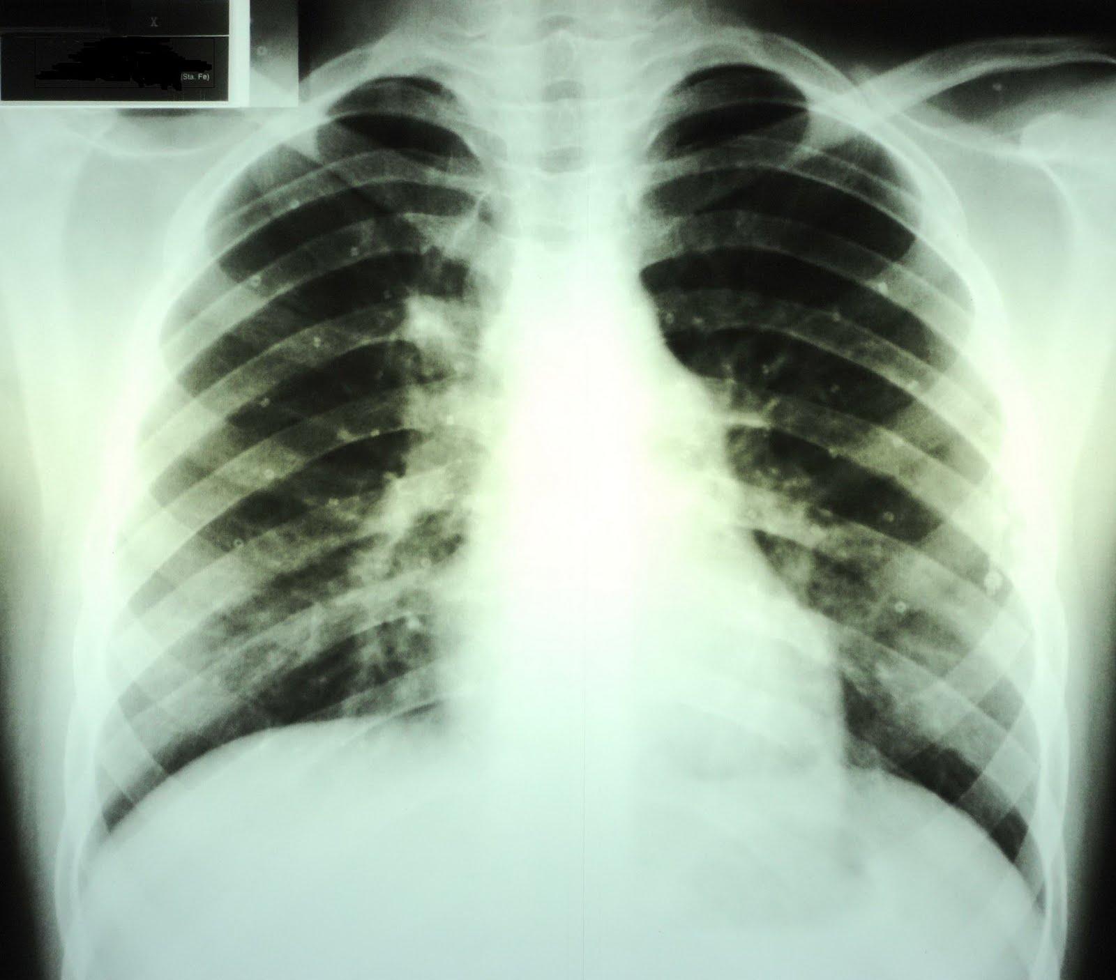 Fernando G. Meneghetti: Falsas imágenes pulmonares