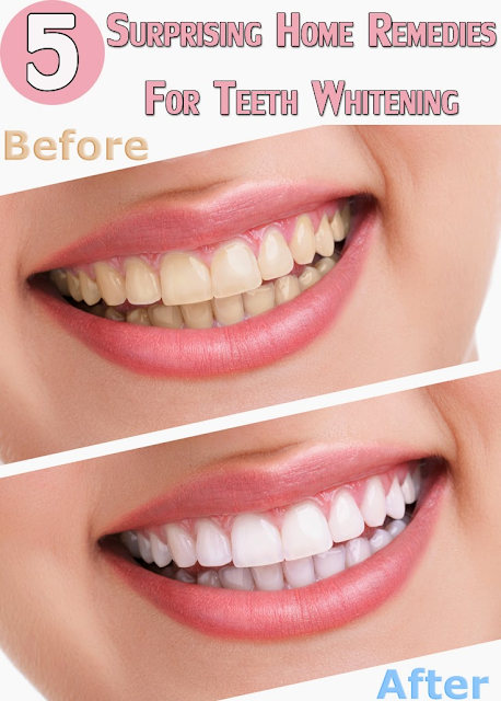 5 Surprising Home Remedies For Teeth Whitening