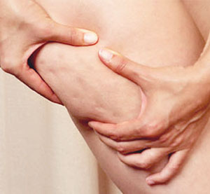 How to get rid of cellulite? - excerise - health - fitness - reduce cellulite - how to