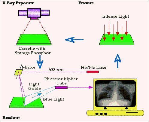 Beyond The Radiography