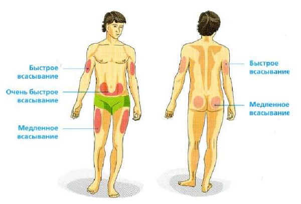 Как сделать подкожный укол в бедро