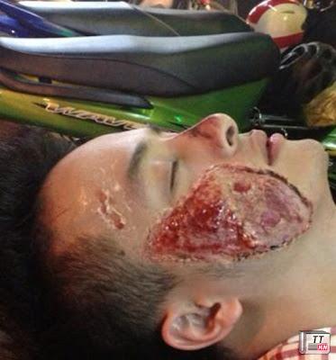 Dù bị thương rất nặng nhưng Cao Thái Sơn vẫn có thể nằm yên để bạn chụp ảnh và đưa lên facebook
