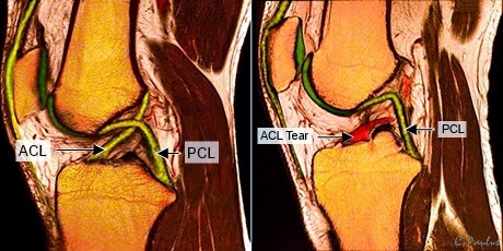 Saggital Color Knee MRI Image of a Torn ACL Ligament