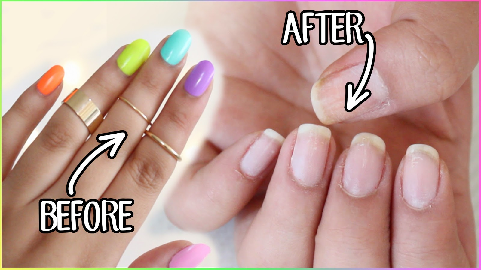 Hellomaphie: HOW TO REMOVE FAKE NAILS
