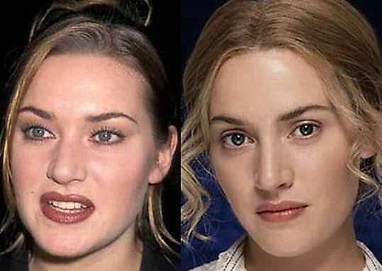 25 Celebrities Before And After Plastic Surgery | Jk