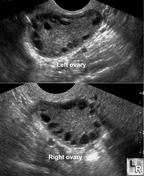 ilang months pwede magpa ultrasound ang buntis
