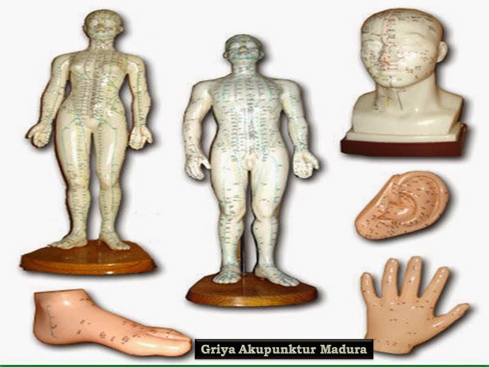 Patung Akupunktur