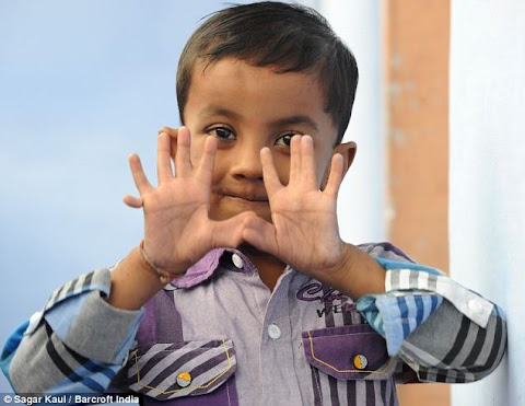Pictures of a four-year-old boy with 25 fingers and toes including double thumbs .