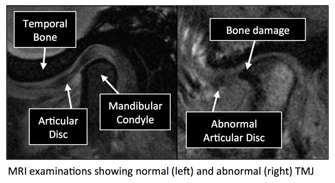 TemporoMandibular Joint MRI anatomy | Radiology Anatomy Images